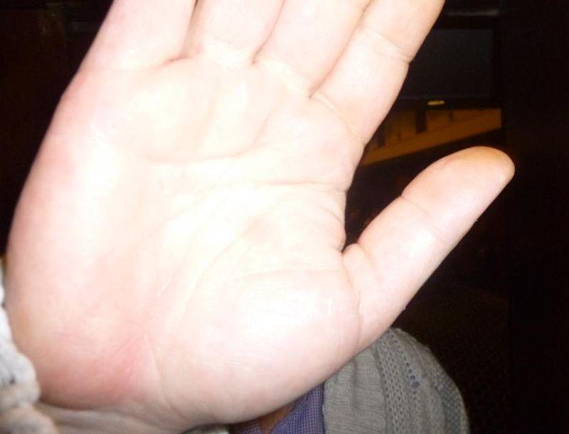Photo #2 hand